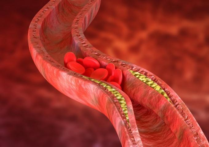 您有高胆固醇吗?